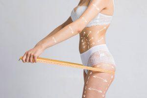 Mulher com o corpo marcado para cirurgia plástica segurando uma fita métrica esticada para frente ao redor dos glúteos